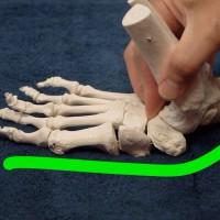 image flat foot